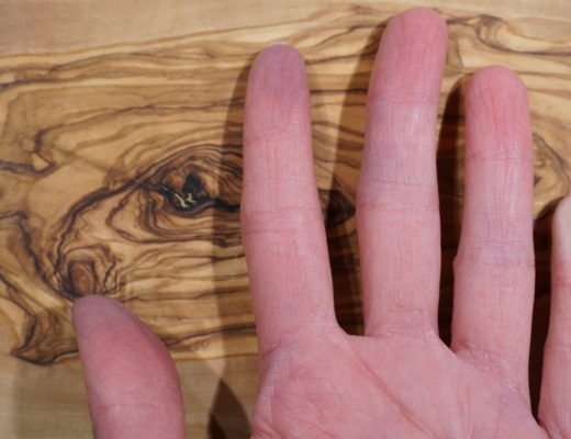 Raynaud's phenomenon: Classic white discoloration of the pinky